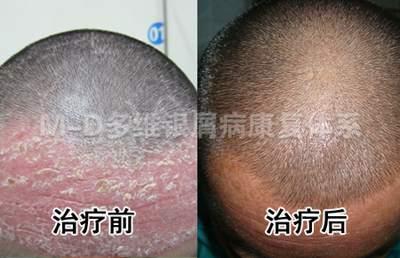 额头牛皮癣不能见人 规范化诊疗重现健康皮肤